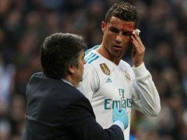 El día después: así quedó el rostro de Cristiano Ronaldo