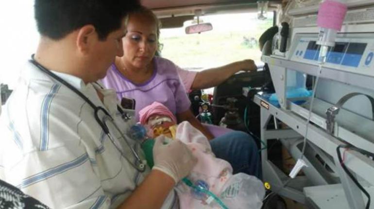 Bebé con corazón expuesto no resistió y falleció