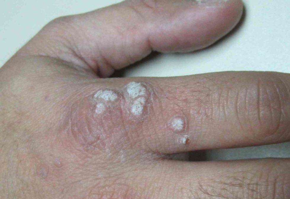 Más de 20 hombres al mes son atendidos por el virus del papiloma humano en Tarija