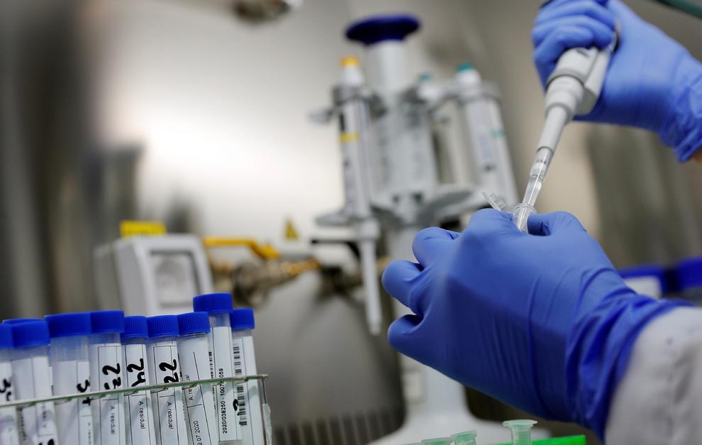 Lo que el ébola y el HIV pueden aportar como enseñanzas para el COVID-19