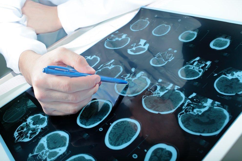 Científicos descubrieron por qué algunos pacientes con Parkinson sufren alucinaciones