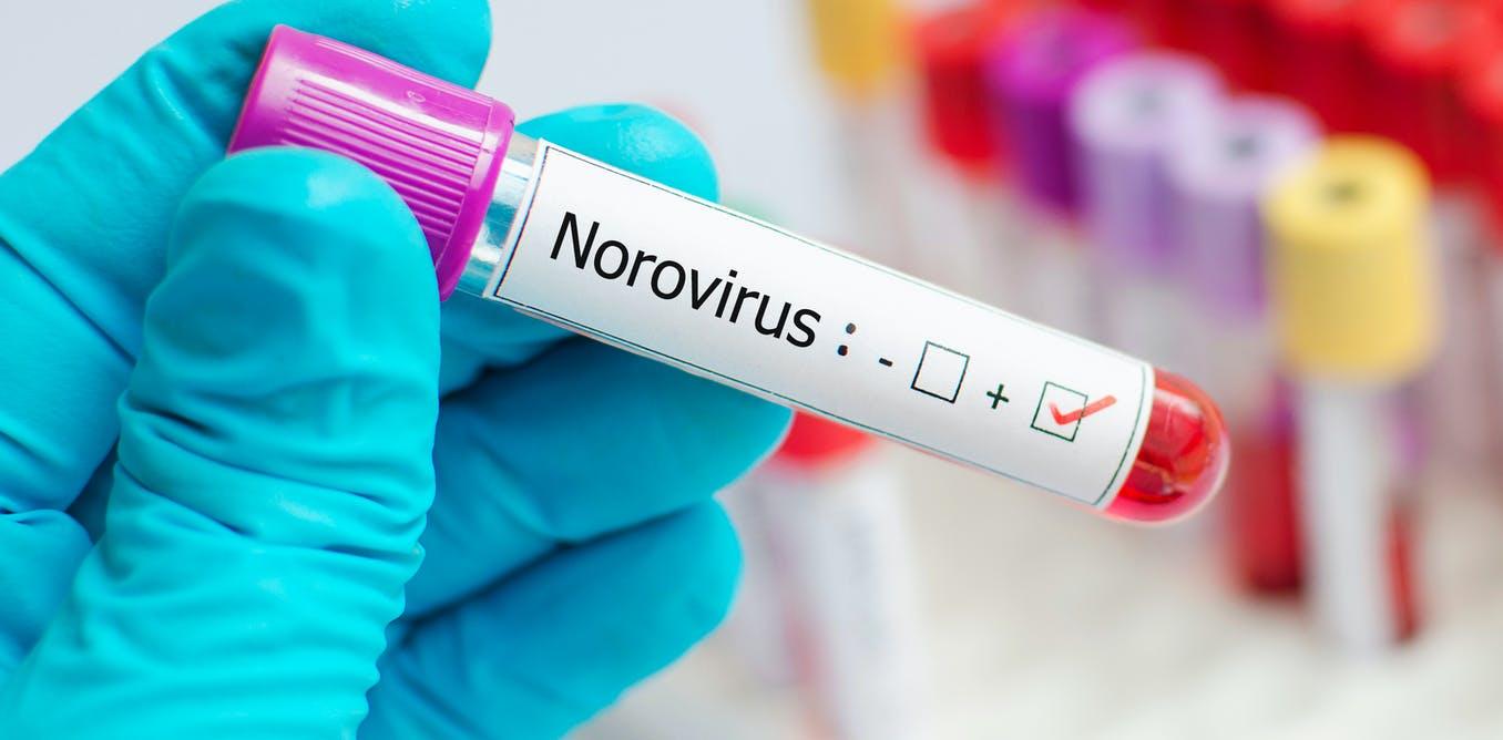 Cómo se contagia y se trata el norovirus, el virus que registra un brote en el Reino Unido y preocupa a los expertos